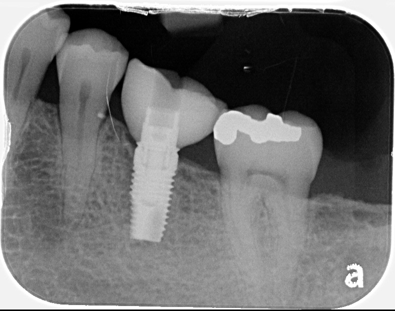 Single molar dental implant x-ray