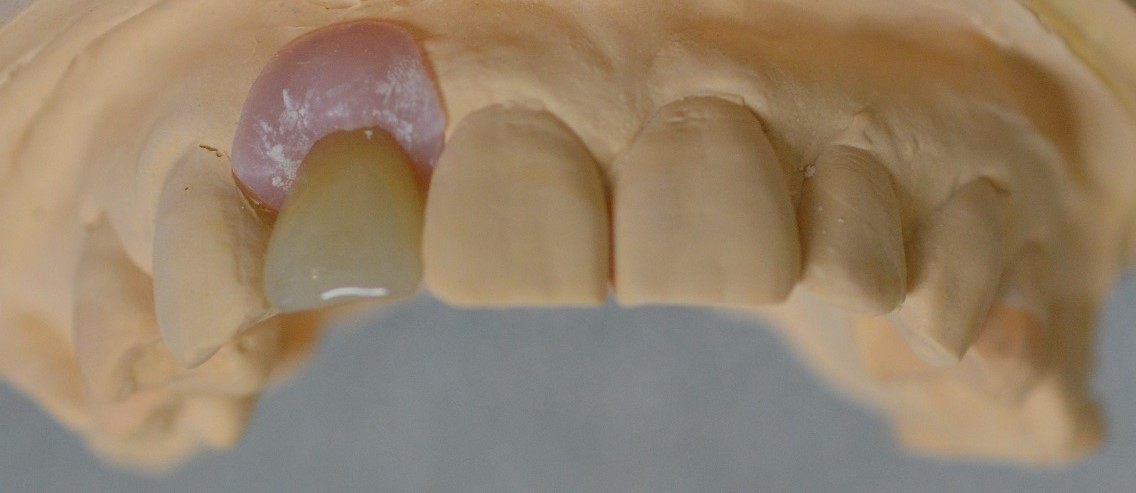 Anterior Implant Crown