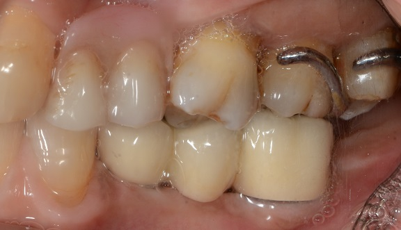 Lower 3-unit bridge on 2 dental implants