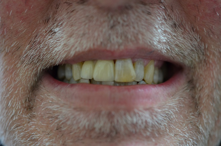 2 incisors on a single implant