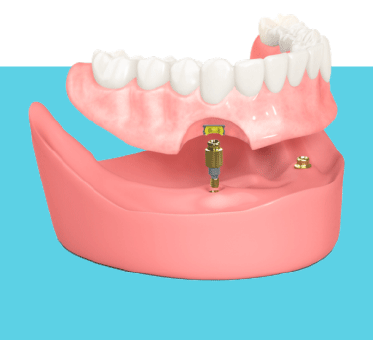 Implant Solution Adelaide IMPANT RETAINED DENTURES