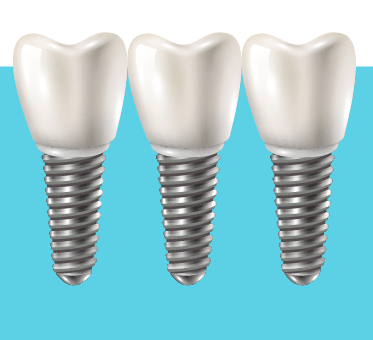 Implant Solution Adelaide MULTIPLE DENTAL IMPANT